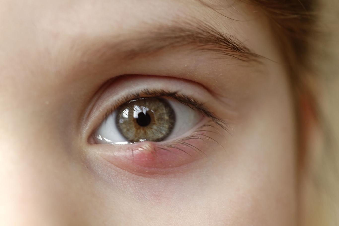 Álbum - Galería de imágenes de Chalazión y Orzuelos en la oftalmología pediátrica - Dr. Alvaro Sanabria - Venezuela