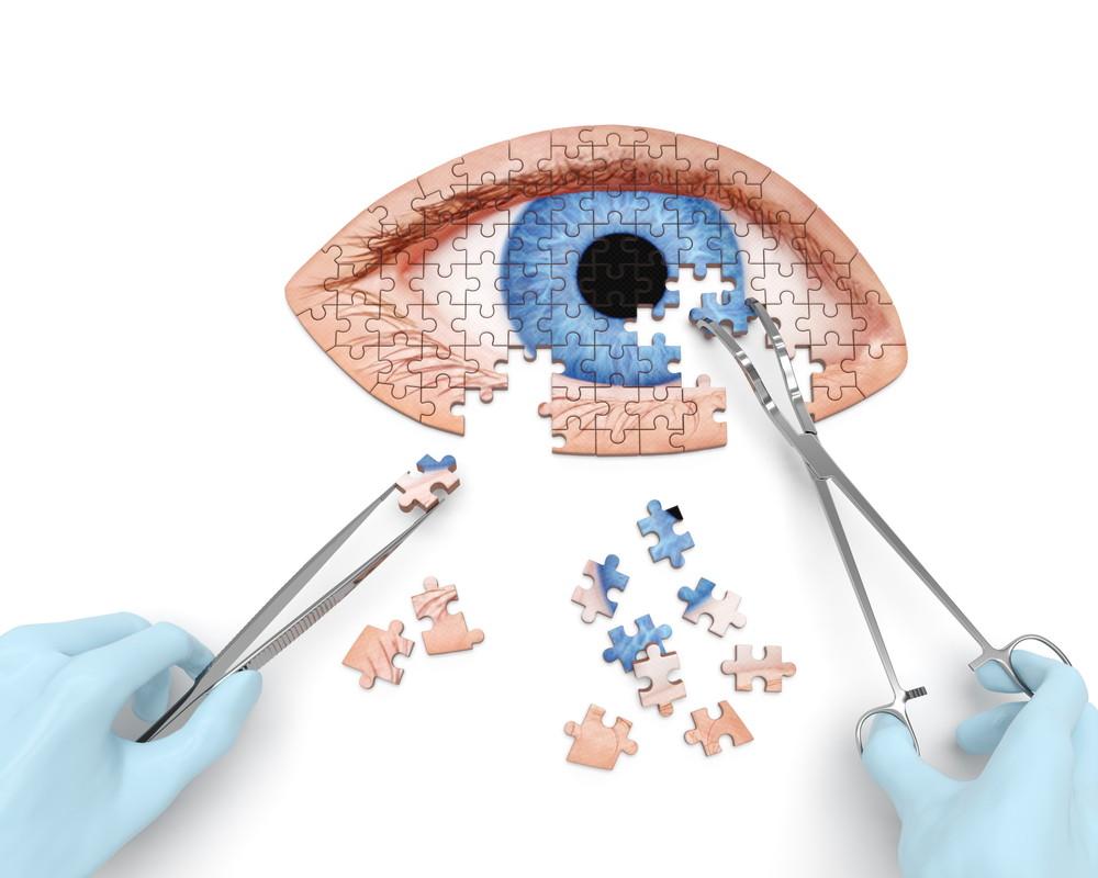 Cirugía de vías lagrimales - Estrabismo - Oftalmología pediátrica Alvaro Sanabria