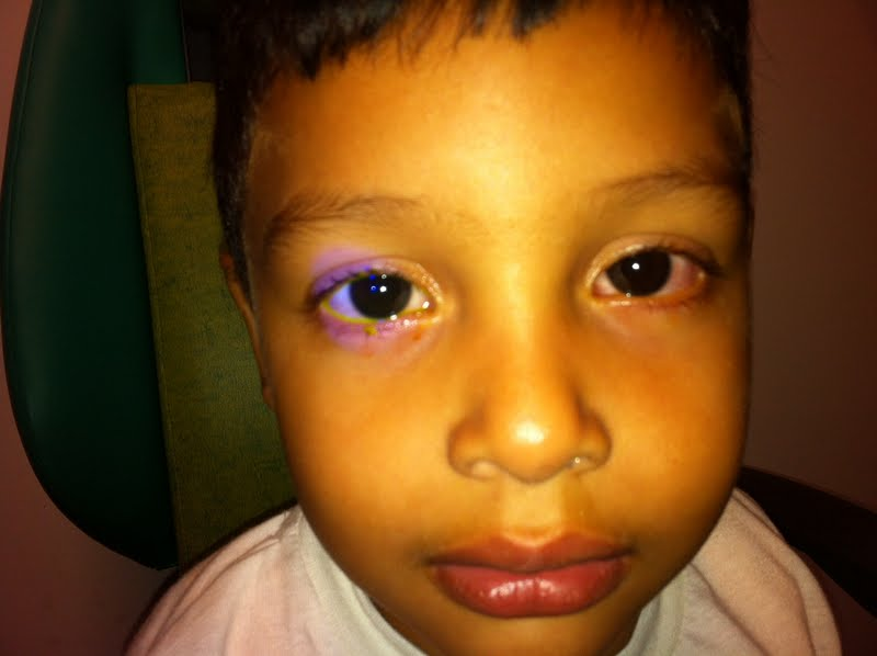 Paciente con epífora (lagrimeo continuo) - Obstrucción de la vía lagrimal - Nasolagrimal - Oftalmología pediátrica - Dr. Alvaro Sanabria