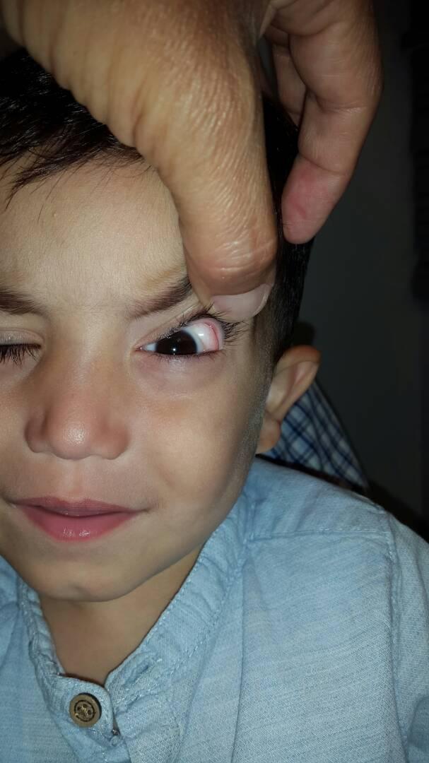 Foto 2 - Dermolipoma de la órbita o lipodermoide conjuntival - Oftalmología pediátrica y Estrabismo - Dr. Alvaro Sanabria