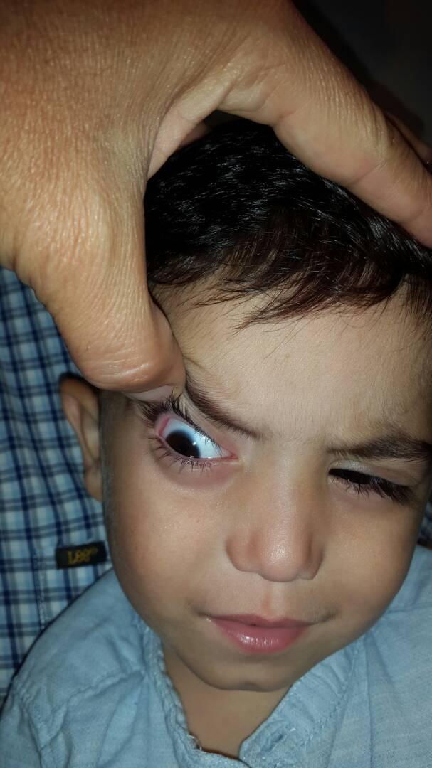 Foto 3 - Dermolipoma de la órbita o lipodermoide conjuntival - Oftalmología pediátrica y Estrabismo - Dr. Alvaro Sanabria