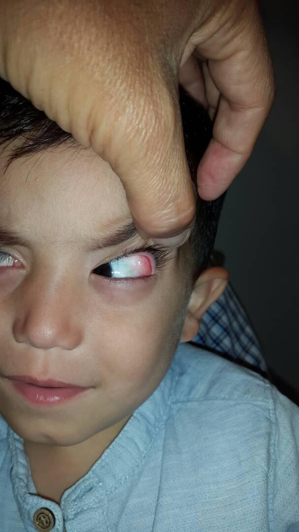 Foto 1 - Dermolipoma de la órbita o lipodermoide conjuntival - Oftalmología pediátrica y Estrabismo - Dr. Alvaro Sanabria