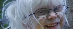 Albinismo ocular - Oftalmología pediátrica - Niños albinos oculocutáneo