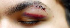 Accidentes oculares - Oftalmología en Caracas, Margarita y Venezuela