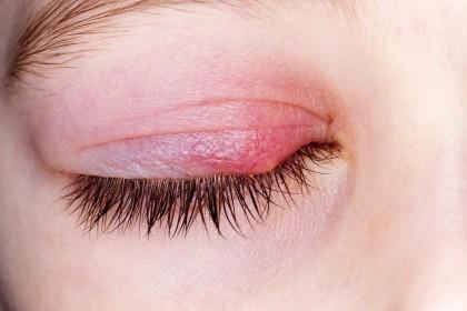 Blefaritis, inflación de los párpados - Oftalmología pediátrica
