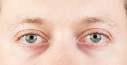 Cansancio ocular - Mirada cansada - Salud visual