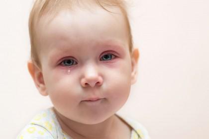 Conjuntivitis alérgica en niños - Oftalmología pediátrica en Venezuela