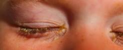 Conjuntivitis bacteriana - Infección de los ojos Venezuela