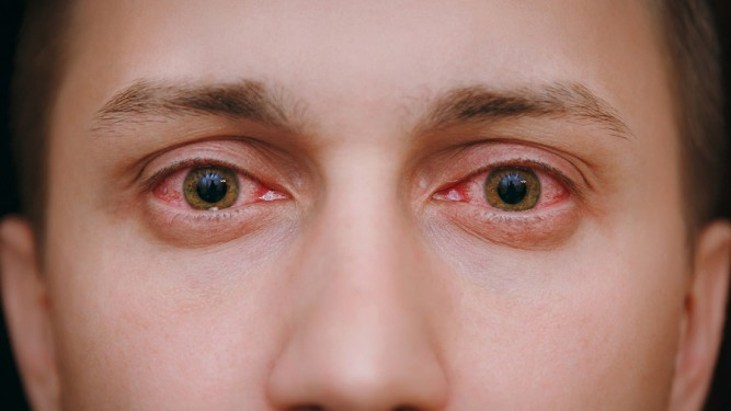 Conjuntivitis - Enfermedades de los ojos - Dr. Alvaro Sanabria -Oftalología pediátrica - Venezuela