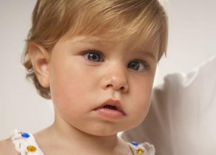 Endotropía (esotropía) congénita o de aparición precoz