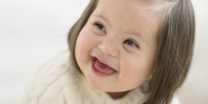 Estrabismo en niños con síndrome de Down