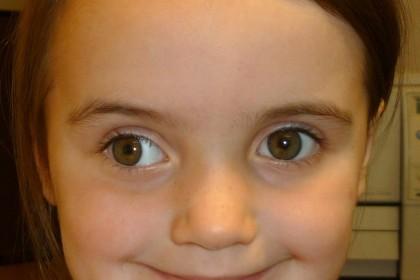 Exotropía adquirida, caso de estrabismo en la oftalmología pediatrica Venezuela - Dr Alvaro Sanabria
