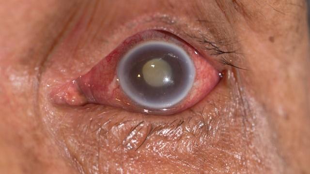 Glaucoma - Oftalmología - Dr. Alvaro Sanabria Villarruel - Venezuela