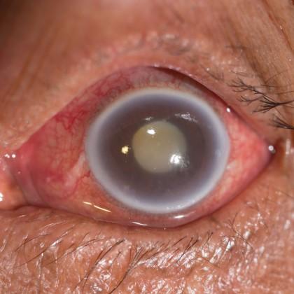 Glaucom crítico - Tensión intraocular - muerte del nervicio - Venezuela