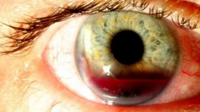 Hifemia ocular - Oftalmología en Venezuela - Dr. Alvaro E. Sanabria Villarruel