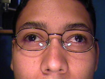 Foto 10 - Caso de paciente con Exotropía por deprivación (Preoperatorio) - Oftalmología pediátrica y Estrabismo - Dr. Alvaro Sanabria
