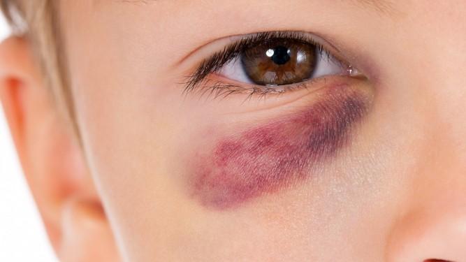 Trauma ocular - lesión en ojos - Oftalmología pediátrica - Venezuela - Alvaro Sanabria