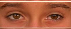 Motilidad ocular - Examen del niño preverbal