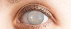 Ojo con cataratas en desarrollo - Diabetes y oftalmología en Venezuela