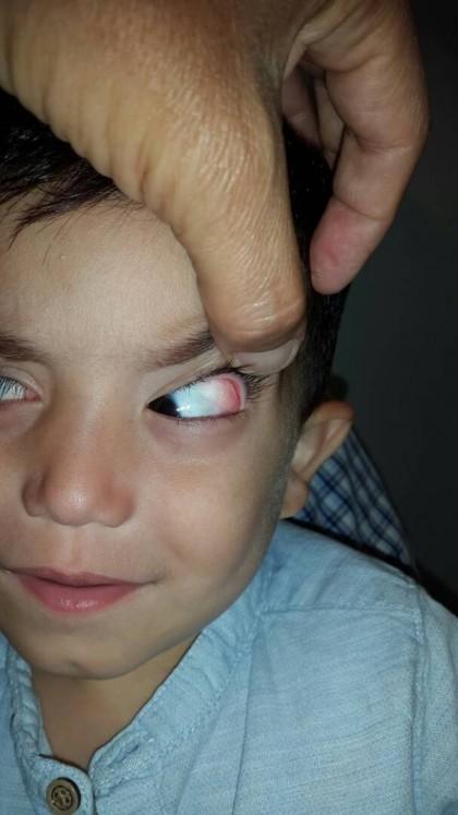 Foto 4 - Dermolipoma de la órbita o lipodermoide conjuntival - Oftalmología pediátrica y Estrabismo - Dr. Alvaro Sanabria