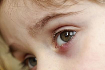 Orzuelos y Chalazión - Enfermedades comunes de los ojos - Oftalmología