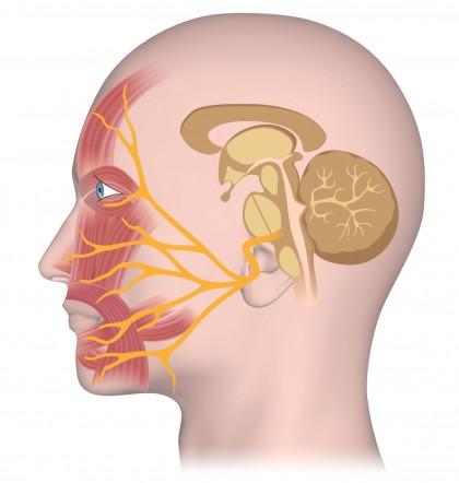 Parálisis de los nervios craneales