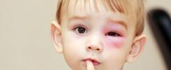 Prevención de accidentes oculares en niños, niñas y adultos - Oftalmología en Venezuela