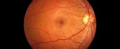 Retina - Presión intraocular
